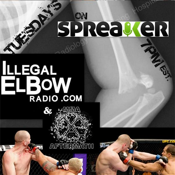 ILLegal Elbow Radio